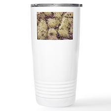 Skin surface, SEM Travel Mug