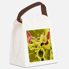 Salmonella bacterial infection, S Canvas Lunch Bag