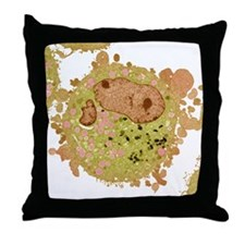Carcinoma cell, colored transmission  Throw Pillow