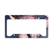 Prostate cancer cells, SEM License Plate Holder