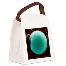 PLGA biomedical device, SEM Canvas Lunch Bag