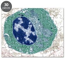 Plasma cell, TEM Puzzle