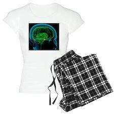 Pituitary gland in the brai Pajamas