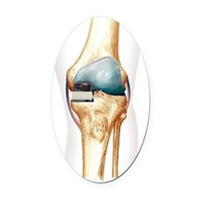 Partial knee replacement, artwork Oval Car Magnet