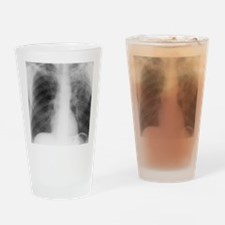Old and new tuberculosis, X-ray Drinking Glass
