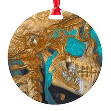 Normal head, cone beam CT scan Ornament