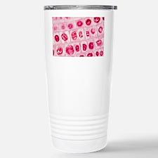 Mitosis, light micrograph Travel Mug