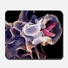 Macrophage engulfing TB bacteria, SEM Mousepad