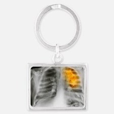 Lung cancer, X-ray Landscape Keychain