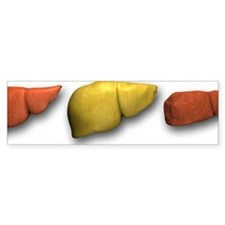 Liver: normal, fatty, cirrhotic Bumper Sticker