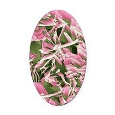 Kidney stone crystals, SEM Oval Car Magnet