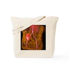 Iliac artery stenosis, 3-D MRI scan Tote Bag