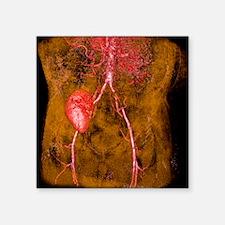 "Iliac artery stenosis, 3-D  Square Sticker 3"" x 3"""