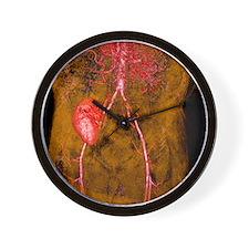 Iliac artery stenosis, 3-D MRI scan Wall Clock