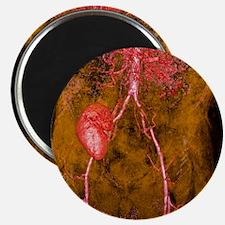 Iliac artery stenosis, 3-D MRI scan Magnet