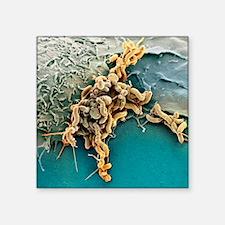 "Helicobacter pylori bacteri Square Sticker 3"" x 3"""