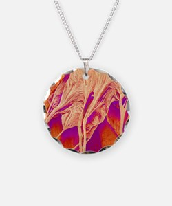 Heart valve and strings, SEM Necklace