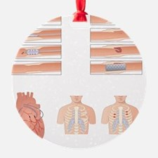 Heart disease treatment, artwork Ornament