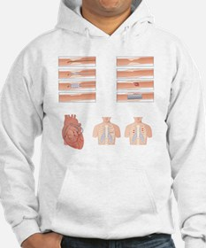 Heart disease treatment, artwork Hoodie Sweatshirt