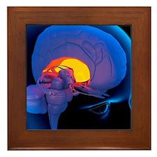 Globus pallidus in the brain, artwork Framed Tile