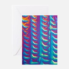 GABA crystals, light micrograph Greeting Card