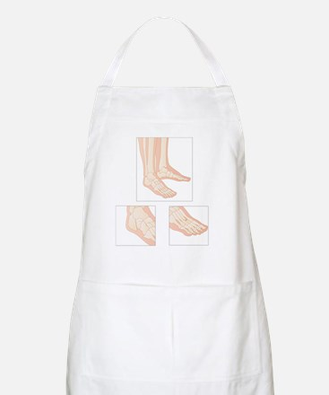 Foot fractures, artwork Apron