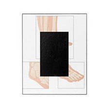 Foot fractures, artwork Picture Frame