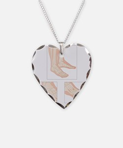 Foot fractures, artwork Necklace