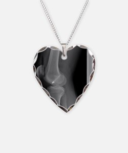 Firearm injury, X-ray Necklace