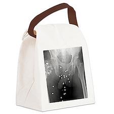 Firearm injury, X-ray Canvas Lunch Bag