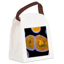 F/col TEM of Enterococcus faecali Canvas Lunch Bag