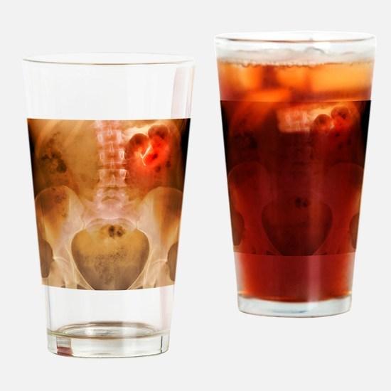 Ectopic IUD contraceptive, X-ray Drinking Glass