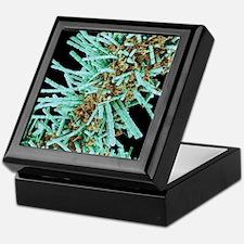 Diatoms, SEM Keepsake Box