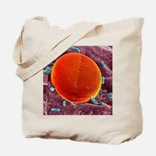Diatom alga, SEM Tote Bag