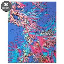 Crystals of adrenalin hormone Puzzle