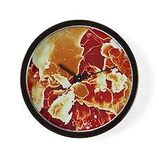 Crystals of cholesterol Wall Clock