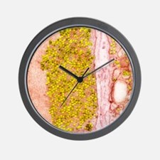Coxsackie B3 virus particles, TEM Wall Clock