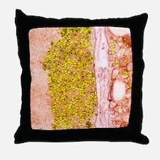 Coxsackie B3 virus particles, TEM Throw Pillow