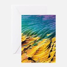 Cortisol crystals, light micrograph Greeting Card