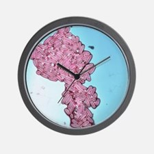 Coloured TEM of Escherichia coli bacter Wall Clock