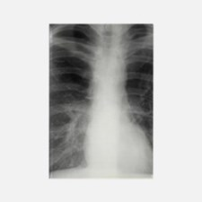 Bullous emphysema, X-ray Rectangle Magnet