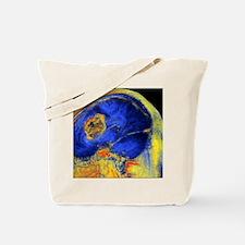 Brain tumour, 3-D MRI scan Tote Bag