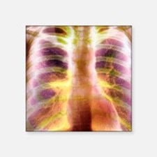 "Bullous emphysema, X-ray Square Sticker 3"" x 3"""