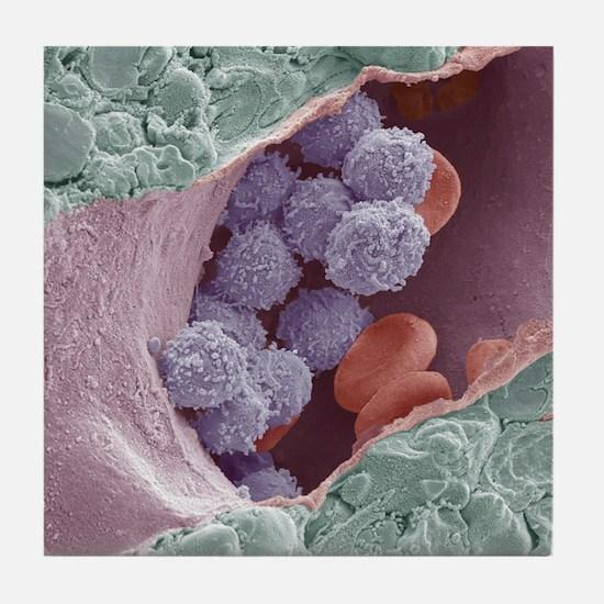 Bone marrow, SEM Tile Coaster