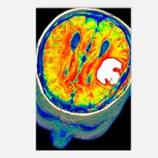 Brain tumour, 3D-MRI scan Postcards (Package of 8)