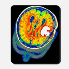 Brain tumour, 3D-MRI scan Mousepad