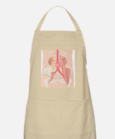 Abdominal aortic aneurysm, artwork Apron