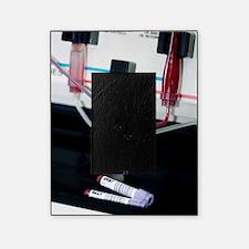 Blood apheresis machine Picture Frame
