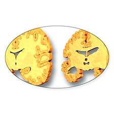 Alzheimer's disease, artwork Decal