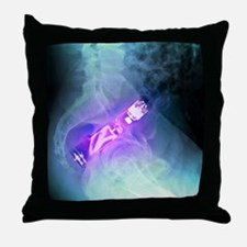 'Electric toothbrush in the rectum, X Throw Pillow
